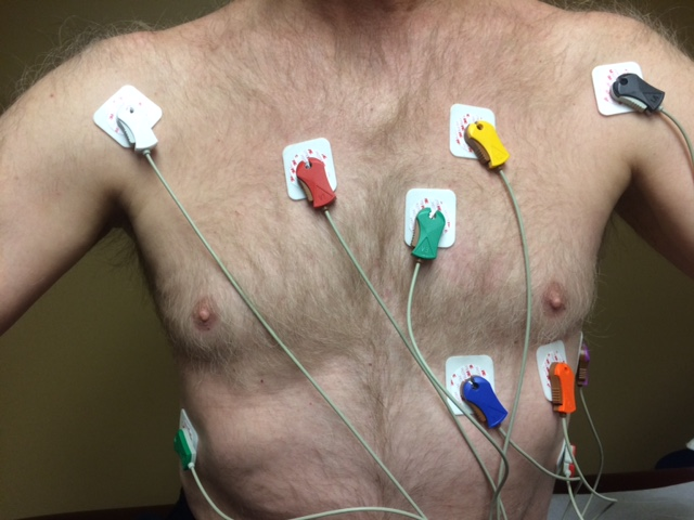 My disgusting chest shows the simplicity of a stress test hookup.  It's quick, painless, and gives you peace of mind on the status of your heart health.  (December 2016)
